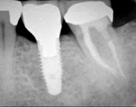 Nooshin Vasfi in Dental Surgery Milton Keynes Endodontist